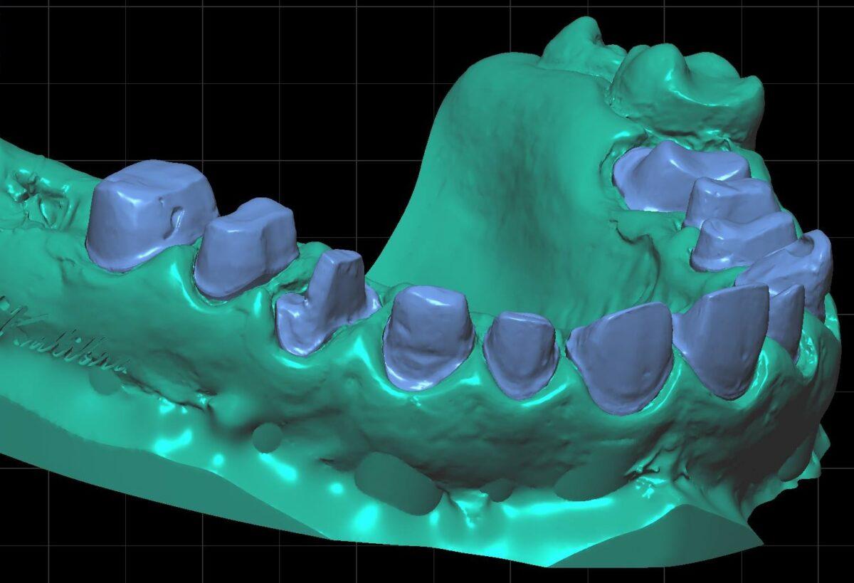 Полностью цифровой протокол для одной челюсти